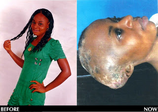 funke-before-and-after2